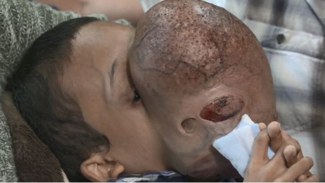 Boy with 10-pound tumour on face dies