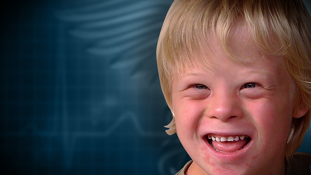 Bill to ban abortions based on Down syndrome lives on at Capitol
